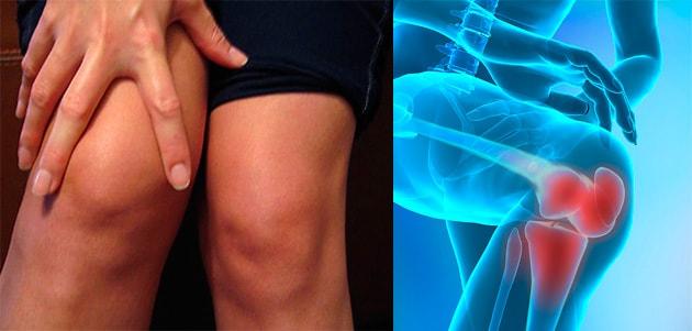 Проявления артроза, основные жалобы и клинические симптомы артроза крупных суставов у взрослых